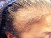 白髪、前頭部の薄毛。。。でもケミカルでかぶれる母。。。